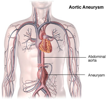 inoperable aortic aneurysm diagram