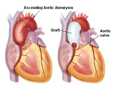 The ascending aortic aneurysm is best repaired by replacing the ballooned out aortic segment with a tubular graft