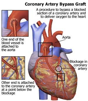 minimally invasive coronary artery bypass surgery diagram