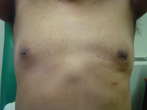 minimally invasive heart surgery scar