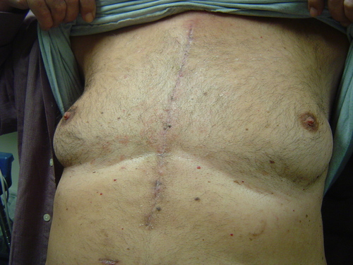 traditional sternotomy scar