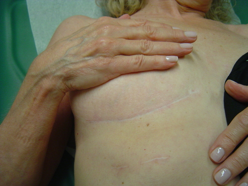 minimally invasive heart surgery scar female 2
