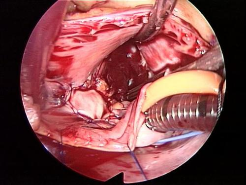 after minimally invasive atrial myxoma surgery picture