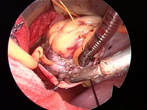 minimally invasive atrial myxoma surgical picture