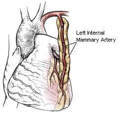 minimally invasive coronary artery bypass surgery mammarysm