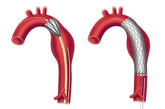 A Stent is deployed to repair a Thoracic Aortic Aneurysm