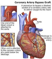 minimally invasive heart valve surgery