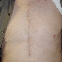 Heart Surgery Scars