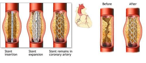 coronary artery stents diagram