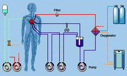 heart lung machine diagram