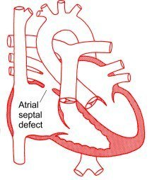 hole in the heart - atrial septal defect