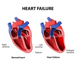 Heart Failure Prevention
